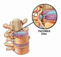 show-herniated-disc